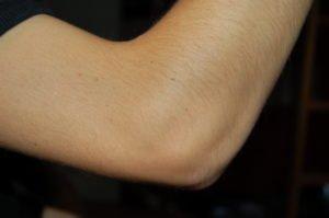 loket mimovolne zaskuby svalu