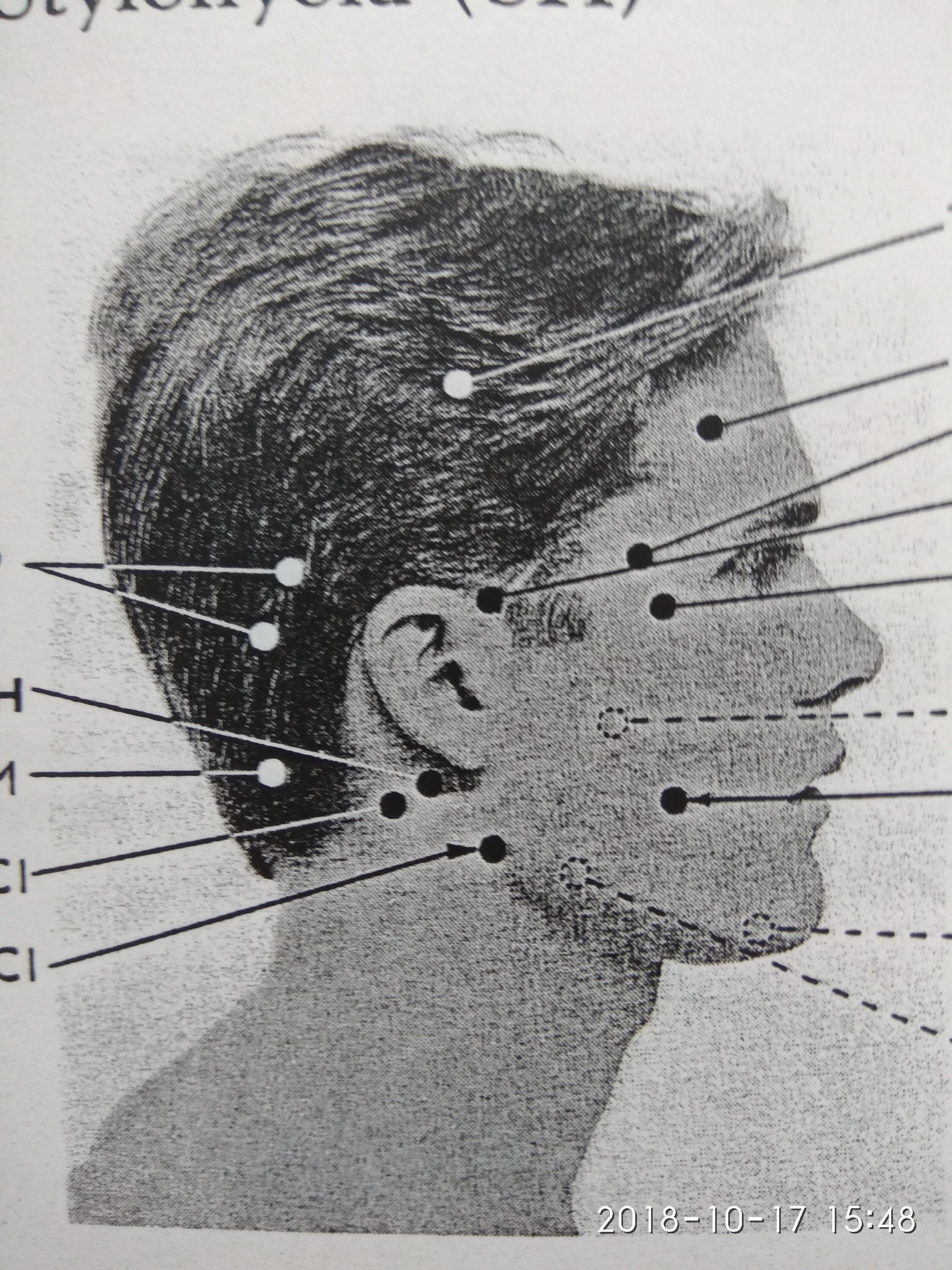 Ukázka spoušťových bodů na hlavě člověka